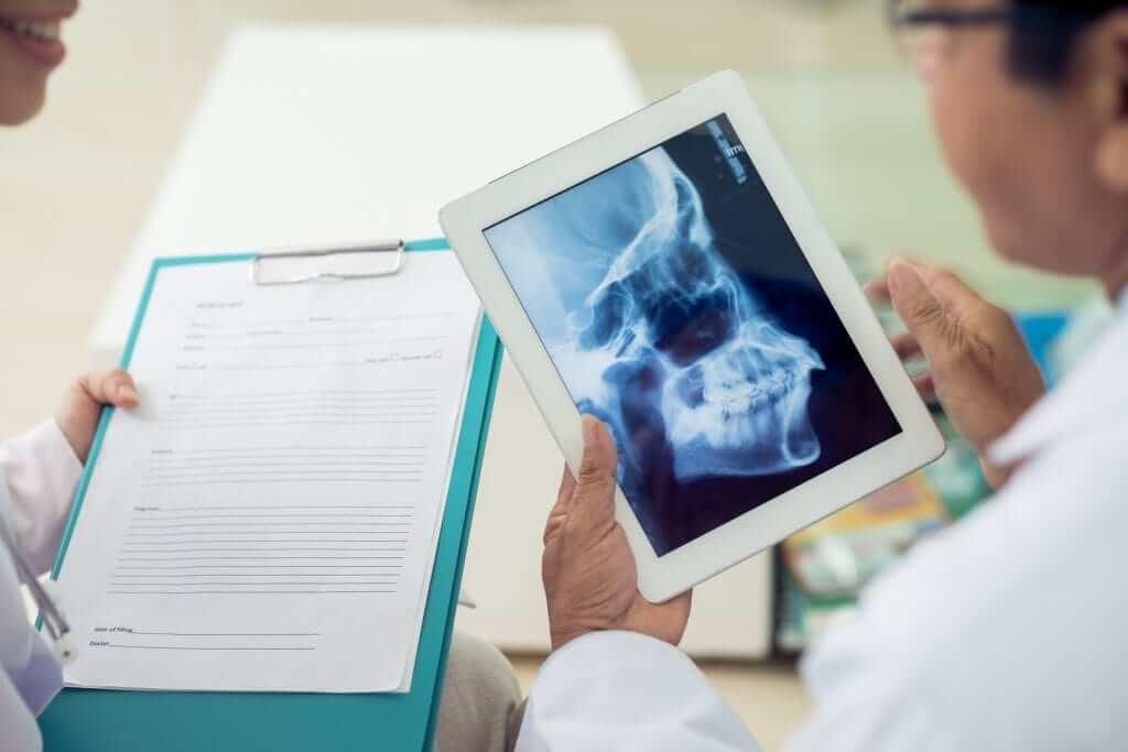 x-ray-airway