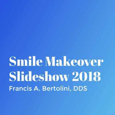 Smile Makeovers 2018