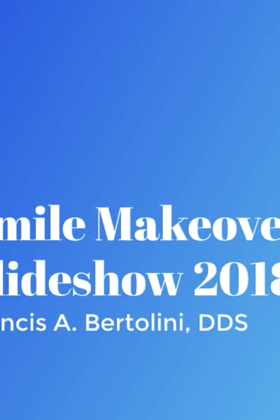 Francis A. Bertolini, DDS Smile Makeovers