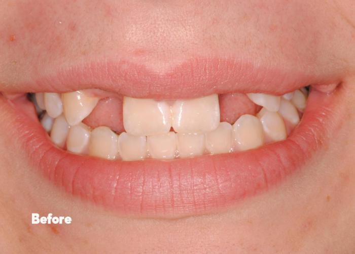 before-mini-dental-implants