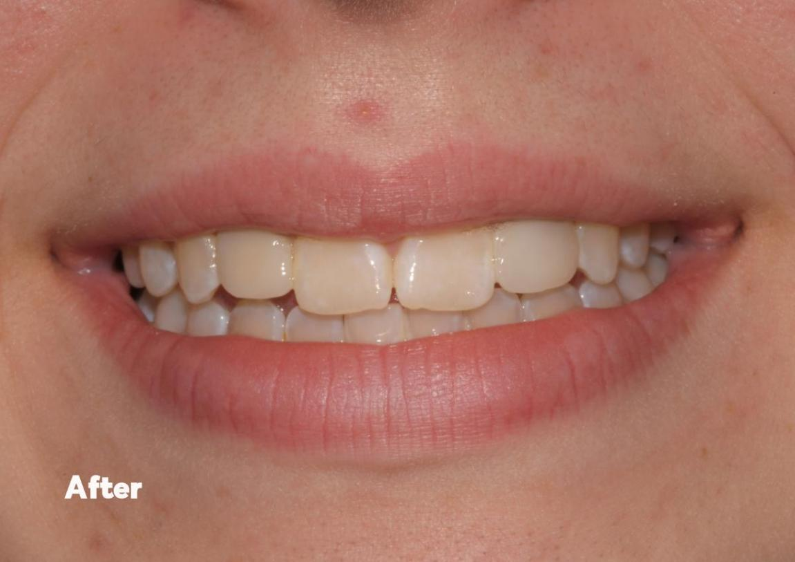 after-mini-dental-implants