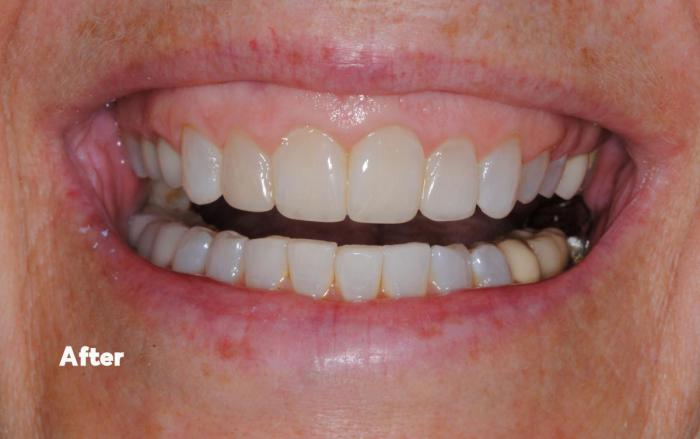 After orthodontics, crown lengthening,  and whitening