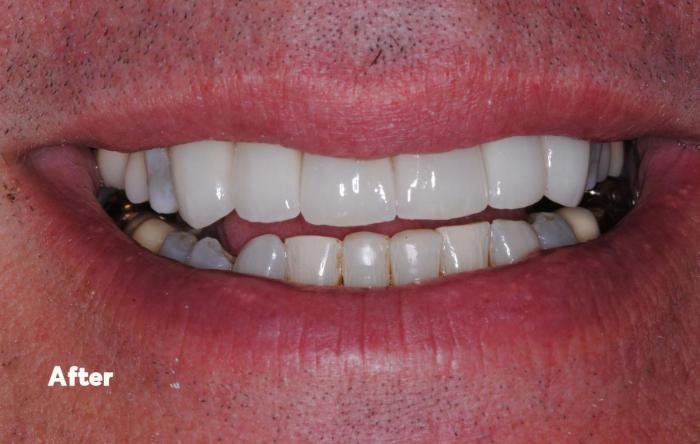 After whitening and veneers
