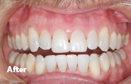After orthodontics and whitening